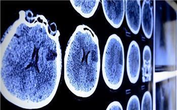 منها السكتة الدماغية.. آثار كارثية لفيروس كورونا على المخ والأعصاب