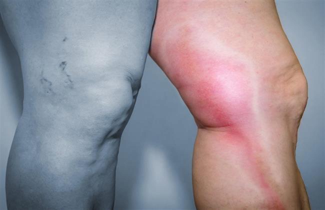 أستاذ جراحات الأوعية يوضح أعراض الجلطة في الرجل