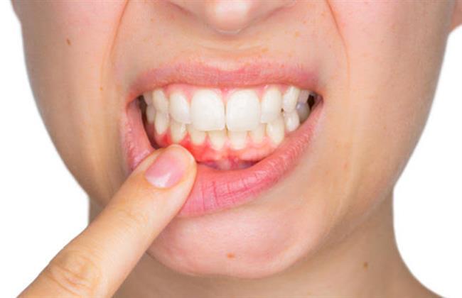 الأسنان وعلاقتها بأمراض المعدة