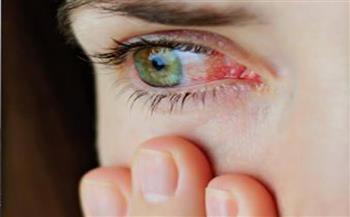 روشتة حماية «العيون» في الصيف